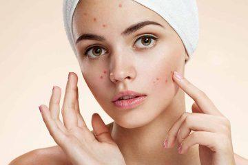 Aknozna i problematična koža