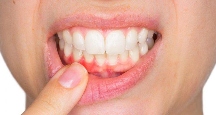 Parodontopatija