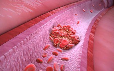 Trombofilija